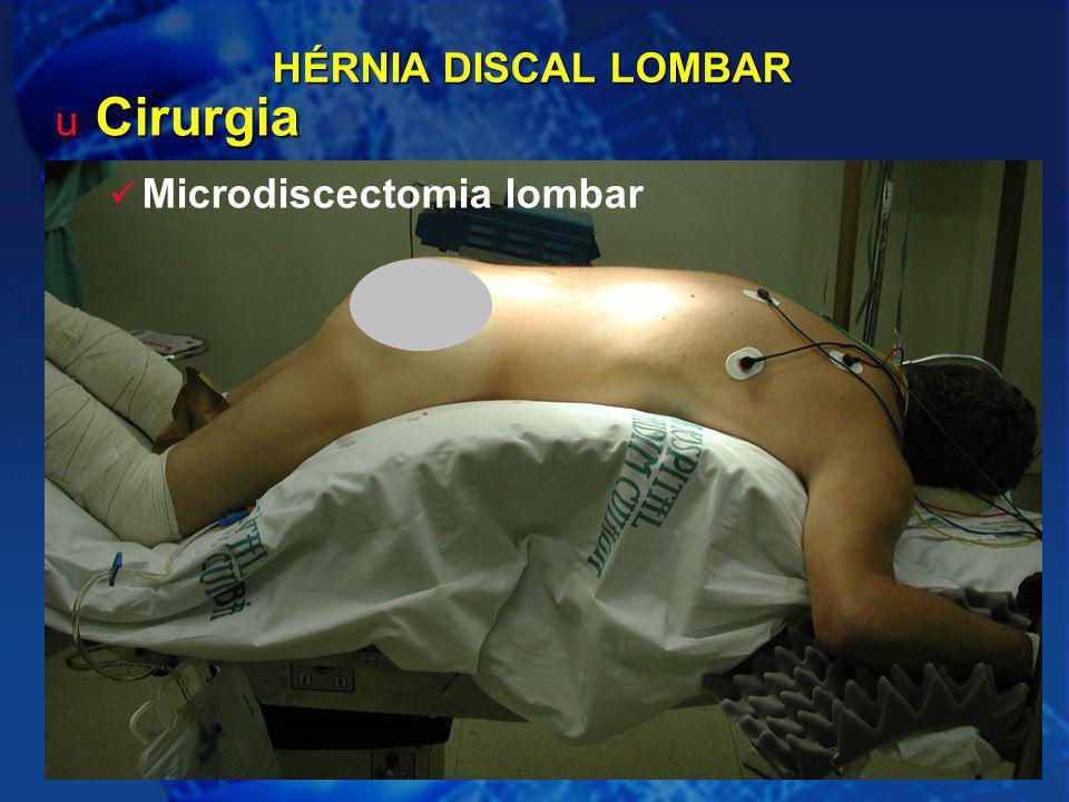 21 HÉRNIA DISCAL LOMBAR u Cirurgia Microdiscectomia lombar