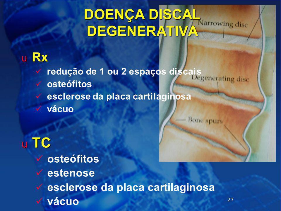 27 DOENÇA DISCAL DEGENERATIVA u Rx redução de 1 ou 2 espaços discais osteófitos esclerose da placa cartilaginosa vácuo u TC osteófitos estenose escler