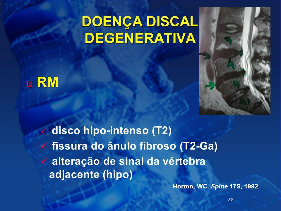 28 DOENÇA DISCAL DEGENERATIVA u RM disco hipo-intenso (T2) fissura do ânulo fibroso (T2-Ga) alteração de sinal da vértebra adjacente (hipo) Horton, WC