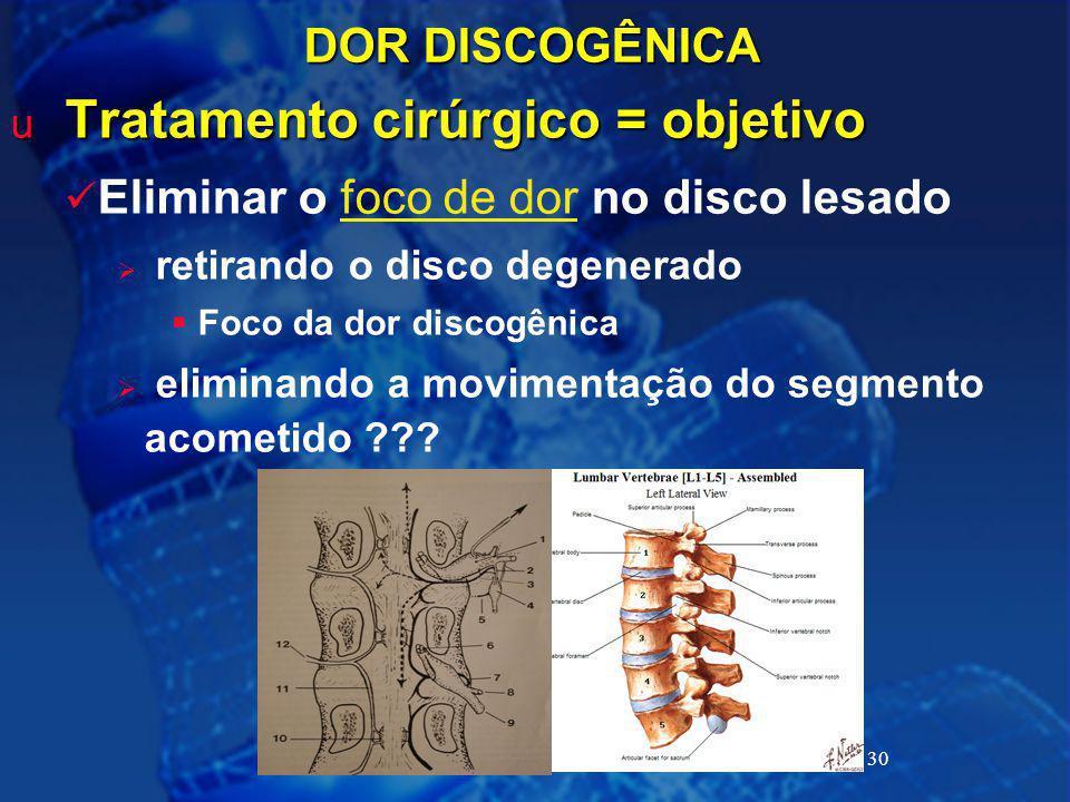 30 DOR DISCOGÊNICA u Tratamento cirúrgico = objetivo Eliminar o foco de dor no disco lesado  retirando o disco degenerado  Foco da dor discogênica 