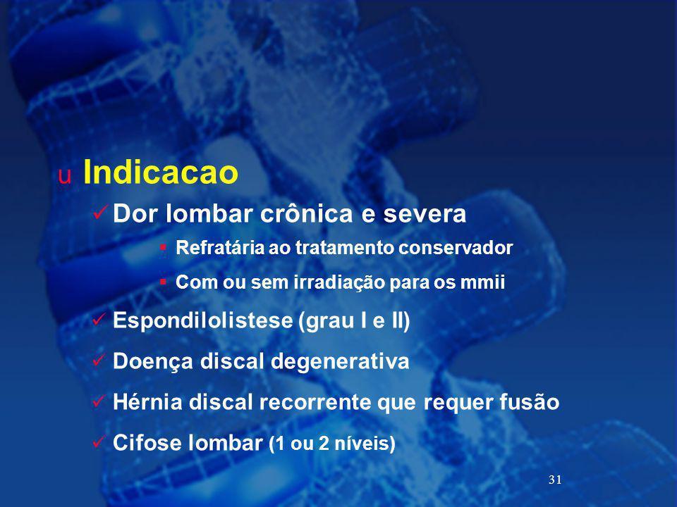 31 u Indicacao Dor lombar crônica e severa  Refratária ao tratamento conservador  Com ou sem irradiação para os mmii Espondilolistese (grau I e II)