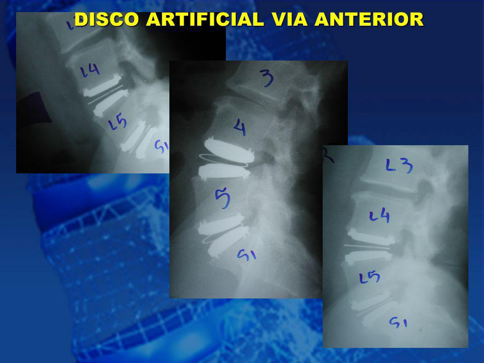 34 DISCO ARTIFICIAL VIA ANTERIOR