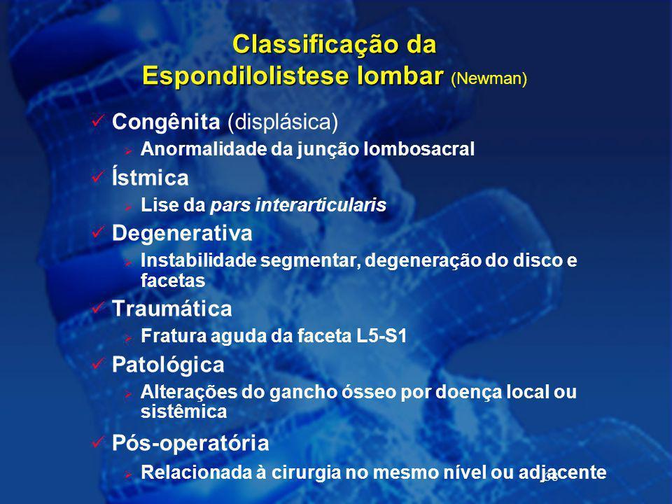 38 Classificação da Espondilolistese lombar Classificação da Espondilolistese lombar (Newman) Congênita (displásica)  Anormalidade da junção lombosac