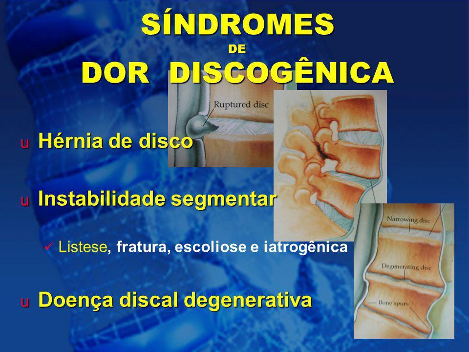 5 SÍNDROMES DE DOR DISCOGÊNICA u Hérnia de disco u Instabilidade segmentar Listese, fratura, escoliose e iatrogênica u Doença discal degenerativa