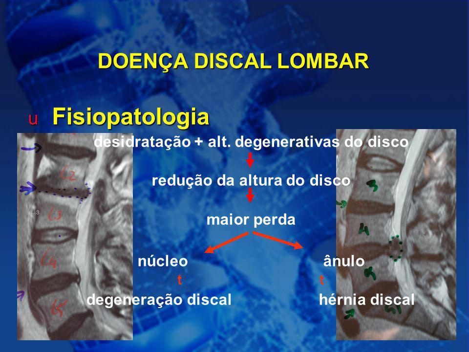 6 DOENÇA DISCAL LOMBAR u Fisiopatologia desidratação + alt. degenerativas do disco redução da altura do disco maior perda núcleoânulo t degeneração di