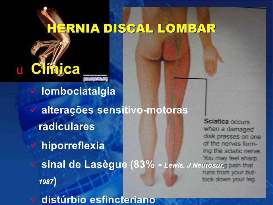 9 HERNIA DISCAL LOMBAR u Clínica lombociatalgia alterações sensitivo-motoras radiculares hiporreflexia sinal de Lasègue (83% - Lewis. J Neurosur. 1987