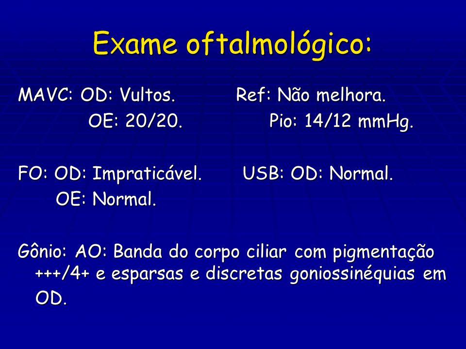 E X ame oftalmológico: MAVC: OD: Vultos. Ref: Não melhora. OE: 20/20. Pio: 14/12 mmHg. OE: 20/20. Pio: 14/12 mmHg. FO: OD: Impraticável. USB: OD: Norm