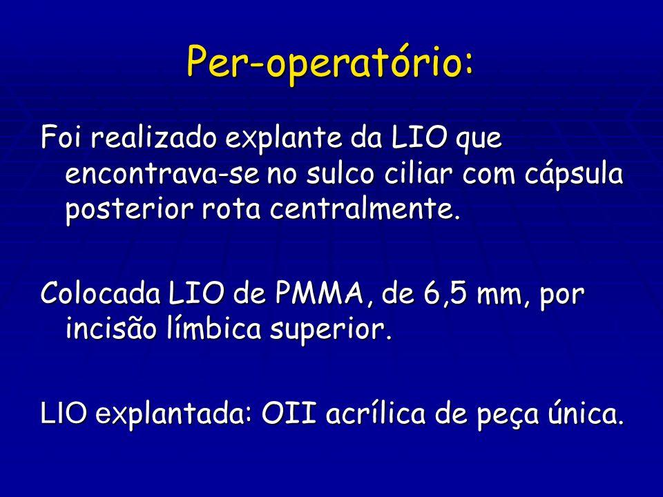 Per-operatório: Foi realizado e X plante da LIO que encontrava-se no sulco ciliar com cápsula posterior rota centralmente. Colocada LIO de PMMA, de 6,