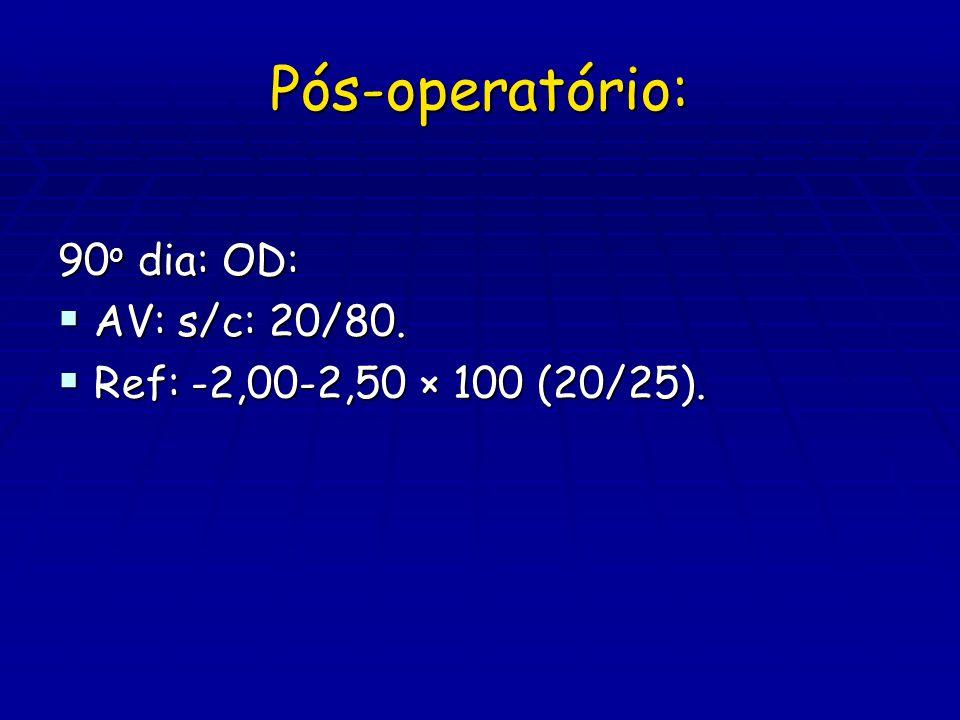 Pós-operatório: 90 o dia: OD:  AV: s/c: 20/80.  Ref: -2,00-2,50 × 100 (20/25).