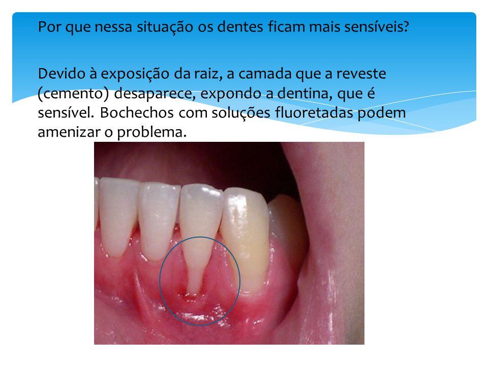 Por que nessa situação os dentes ficam mais sensíveis.
