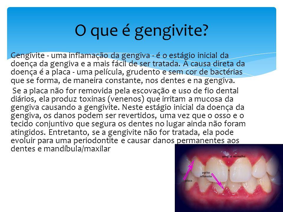 É o deslocamento da gengiva, provocando a exposição da raiz do dente.