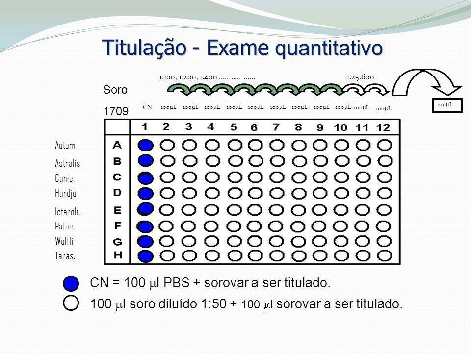 Titulação - Exame quantitativo Soro 1709 CN = 100  l PBS + sorovar a ser titulado. 100  l soro diluído 1:50 + 100  l sorovar a ser titulado. CN 100