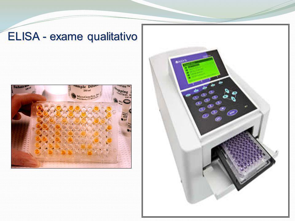 ELISA - exame qualitativo
