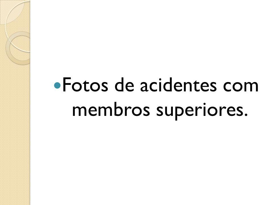 Fotos de acidentes com membros superiores.