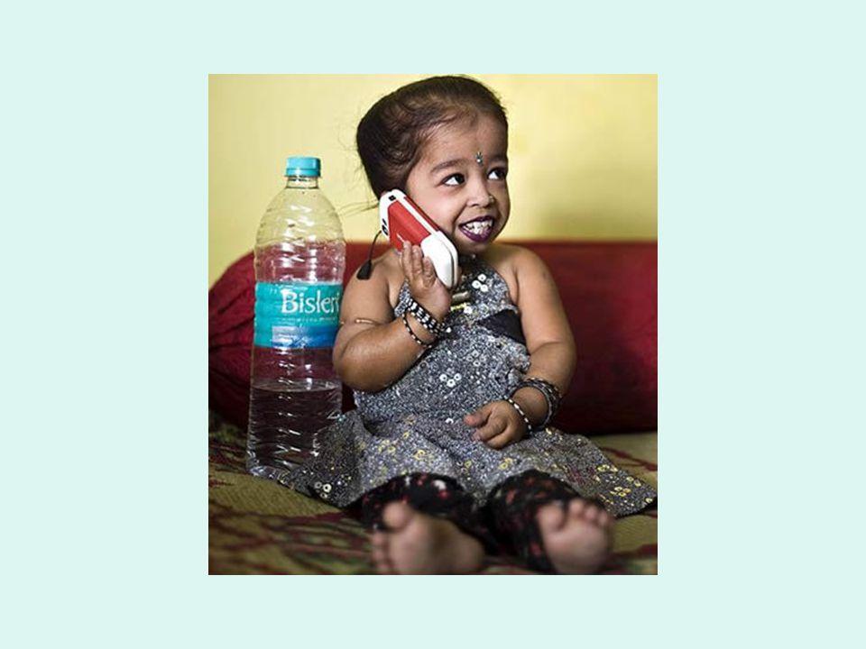 Jvoti tem estatura de uma criança de 1 ano, sofre de uma forma rara de nanismo (achondroplasia) e sua estatura atual corresponde à sua altura máxima.