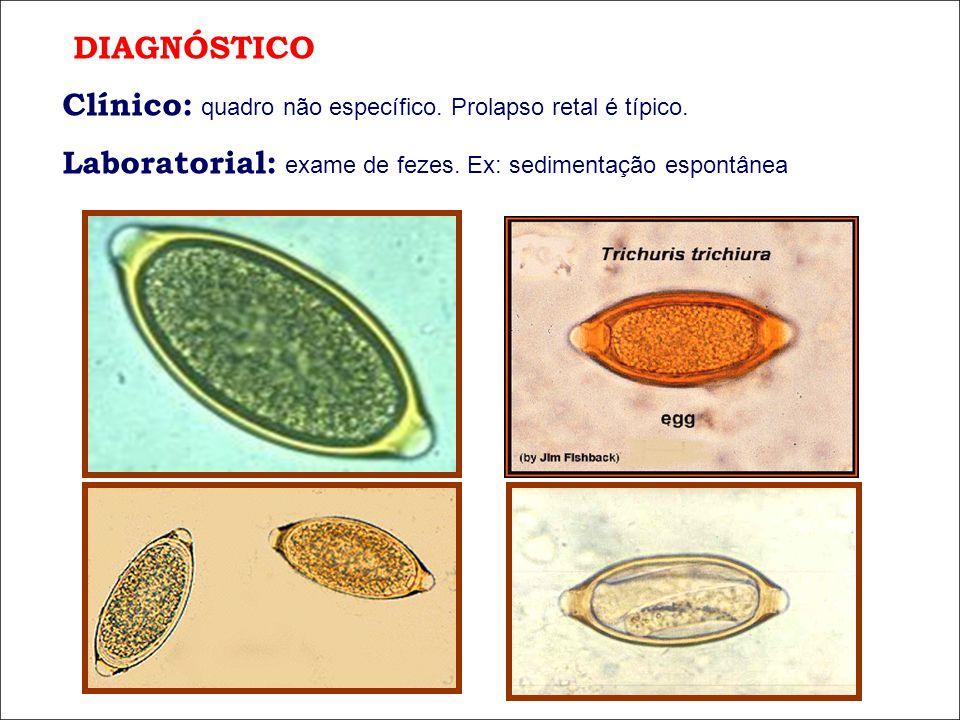 DIAGNÓSTICO Clínico: quadro não específico. Prolapso retal é típico. Laboratorial: exame de fezes. Ex: sedimentação espontânea