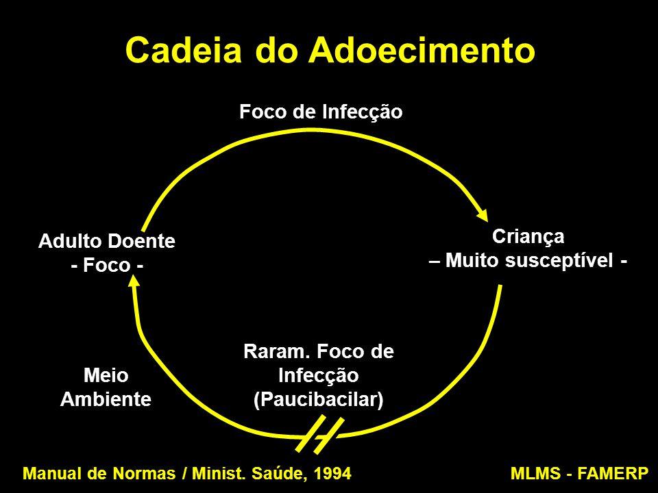 Cadeia do Adoecimento Adulto Doente - Foco - Adulto Doente - Foco - Foco de Infecção Criança – Muito susceptível - Meio Ambiente Raram. Foco de Infecç