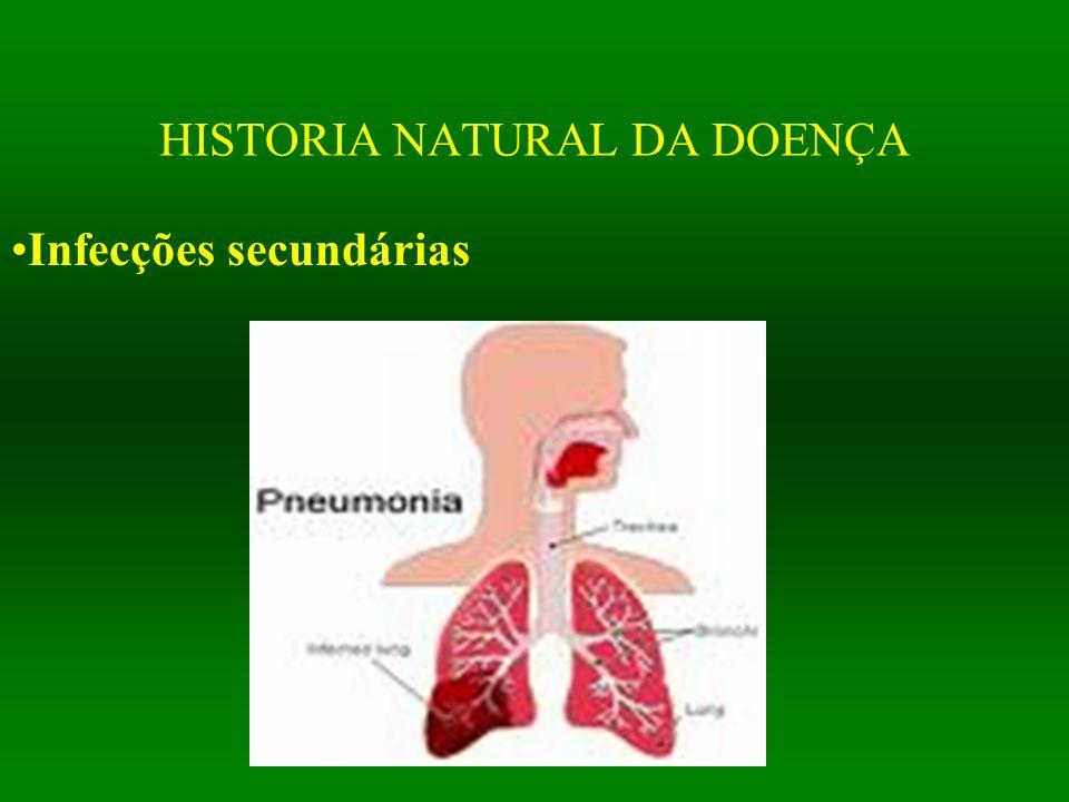 HISTORIA NATURAL DA DOENÇA Infecções secundárias