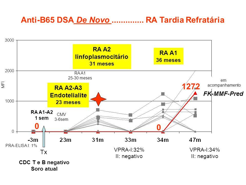 0 Tx CDC T e B negativo Soro atual PRA-ELISA I: 1% Anti-B65 DSA De Novo.............. RA Tardia Refratária VPRA-I:32% II: negativo RA A1-A2 1 sem CMV