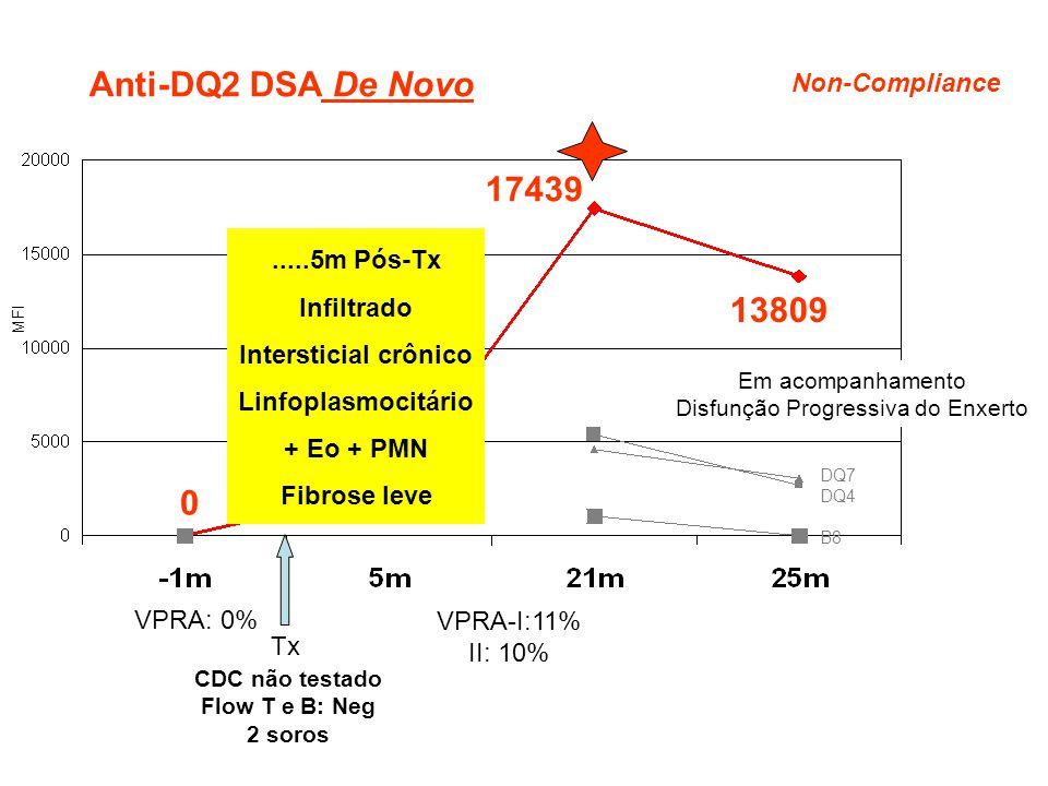 0 17439 Tx CDC não testado Flow T e B: Neg 2 soros VPRA: 0% Anti-DQ2 DSA De Novo 13809 VPRA-I:11% II: 10% DQ7 DQ4 B8.....5m Pós-Tx Infiltrado Intersti