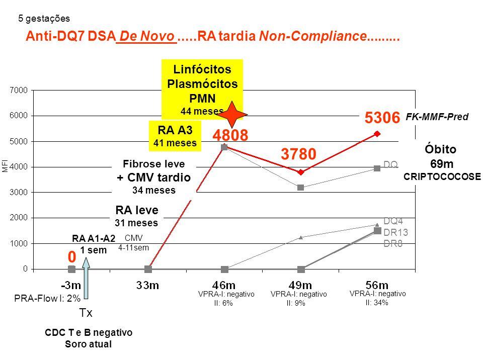 0 Tx CDC T e B negativo Soro atual PRA-Flow I: 2% Anti-DQ7 DSA De Novo.....RA tardia Non-Compliance......... DQ2 DQ4 DR13 DR8 RA A1-A2 1 sem CMV 4-11s