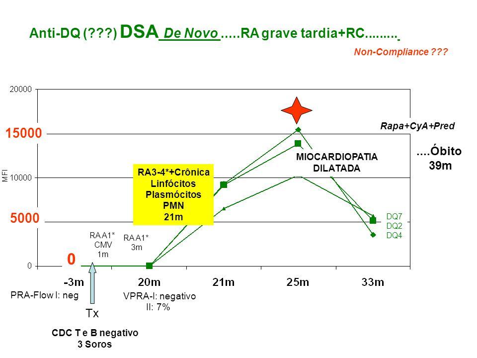 Anti-DQ (???) DSA De Novo.....RA grave tardia+RC......... MFI Tx CDC T e B negativo 3 Soros PRA-Flow I: neg RA A1* CMV 1m RA A1* 3m RA3-4*+Crônica Lin