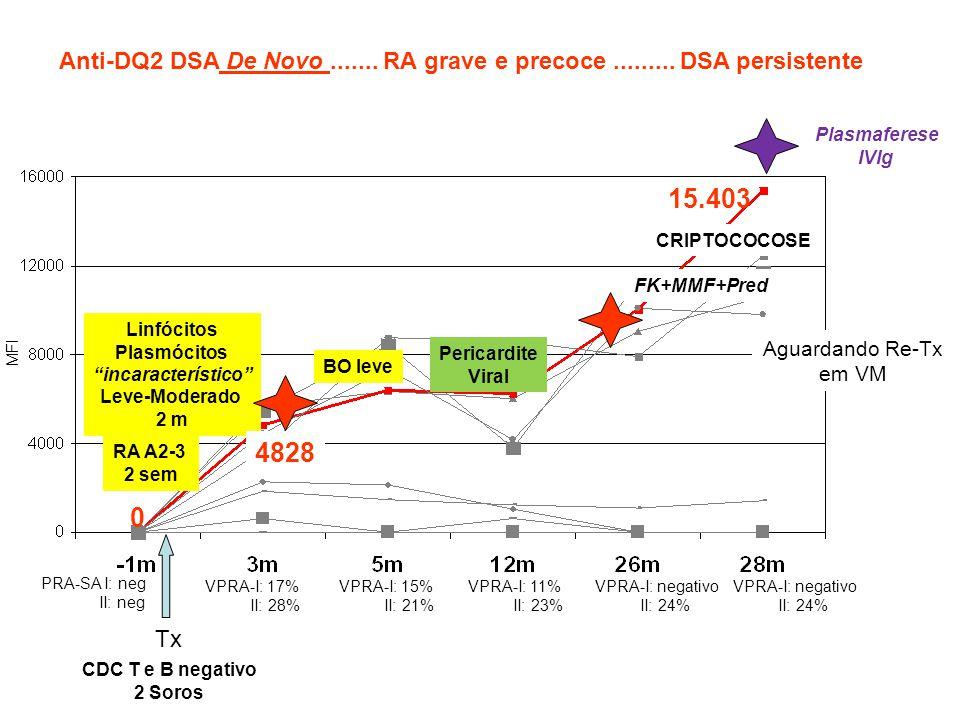 """MFI 15.403 RA A2-3 2 sem Tx PRA-SA I: neg II: neg CDC T e B negativo 2 Soros 0 Linfócitos Plasmócitos """"incaracterístico"""" Leve-Moderado 2 m 4828 VPRA-I"""