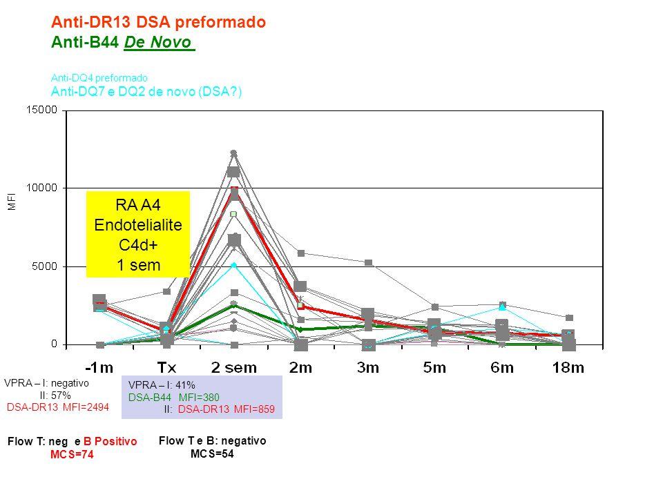 MFI Anti-DR13 DSA preformado Anti-B44 De Novo Anti-DQ4 preformado Anti-DQ7 e DQ2 de novo (DSA?) VPRA – I: negativo II: 57% DSA-DR13 MFI=2494 VPRA – I: