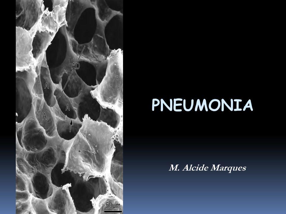 PNEUMONIA M. Alcide Marques