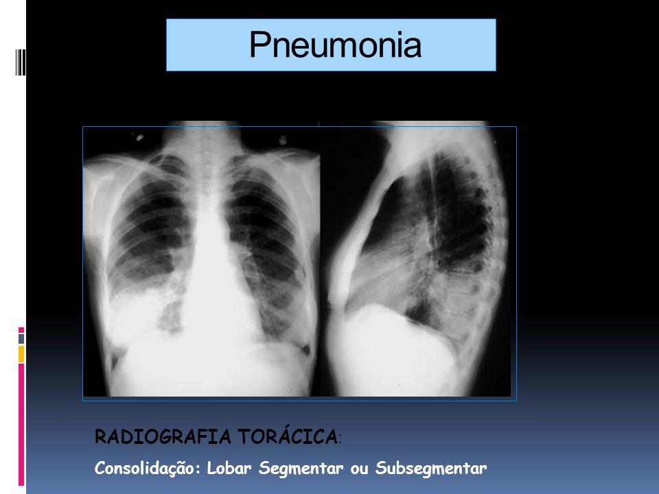 Pneumonia RADIOGRAFIA TORÁCICA : Consolidação: Lobar Segmentar ou Subsegmentar