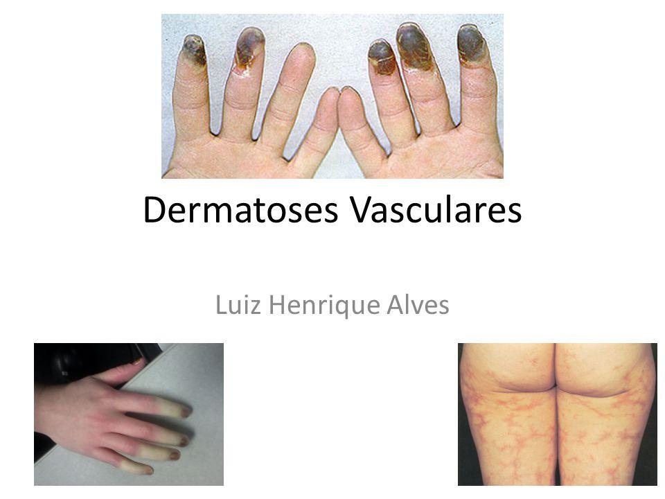 Dermatoses Vasculares Luiz Henrique Alves