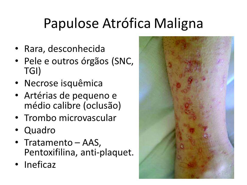 Papulose Atrófica Maligna Rara, desconhecida Pele e outros órgãos (SNC, TGI) Necrose isquêmica Artérias de pequeno e médio calibre (oclusão) Trombo mi