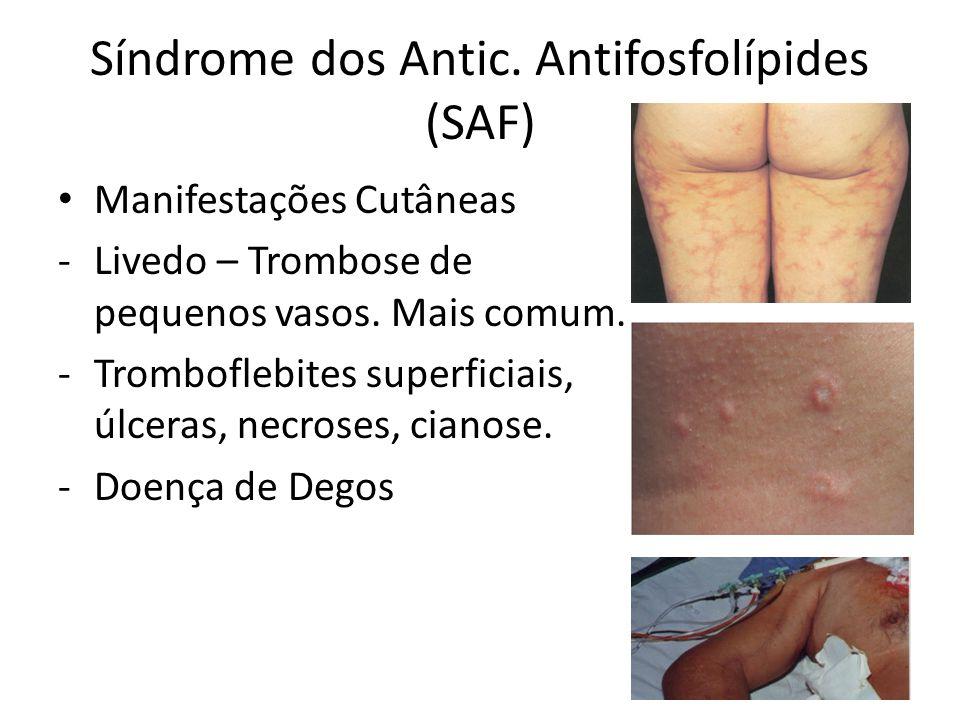 Síndrome dos Antic. Antifosfolípides (SAF) Manifestações Cutâneas -Livedo – Trombose de pequenos vasos. Mais comum. -Tromboflebites superficiais, úlce