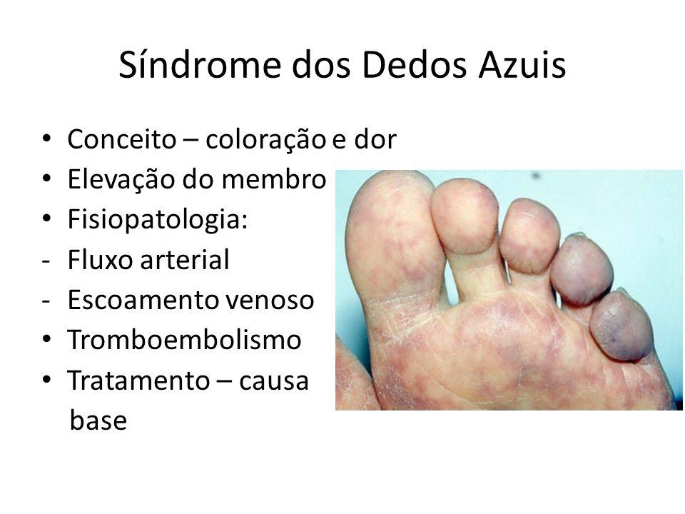 Síndrome dos Dedos Azuis Conceito – coloração e dor Elevação do membro Fisiopatologia: -Fluxo arterial -Escoamento venoso Tromboembolismo Tratamento –