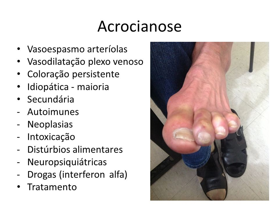 Acrocianose Vasoespasmo arteríolas Vasodilatação plexo venoso Coloração persistente Idiopática - maioria Secundária -Autoimunes -Neoplasias -Intoxicaç