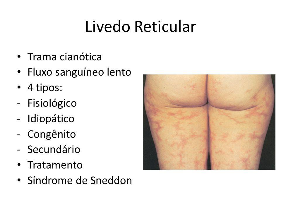 Livedo Reticular Trama cianótica Fluxo sanguíneo lento 4 tipos: -Fisiológico -Idiopático -Congênito -Secundário Tratamento Síndrome de Sneddon