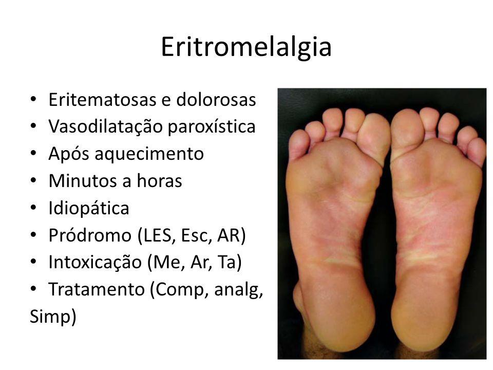 Eritromelalgia Eritematosas e dolorosas Vasodilatação paroxística Após aquecimento Minutos a horas Idiopática Pródromo (LES, Esc, AR) Intoxicação (Me,