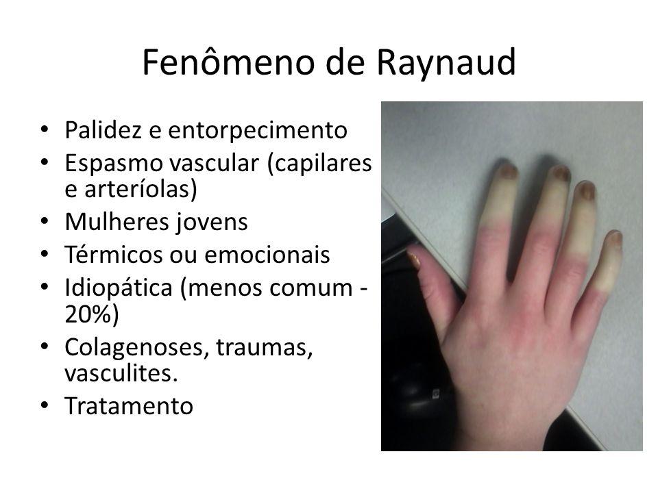 Fenômeno de Raynaud Palidez e entorpecimento Espasmo vascular (capilares e arteríolas) Mulheres jovens Térmicos ou emocionais Idiopática (menos comum