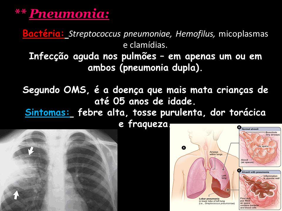** Pneumonia: Bactéria: Streptococcus pneumoniae, Hemofilus, micoplasmas e clamídias. Infecção aguda nos pulmões – em apenas um ou em ambos (pneumonia