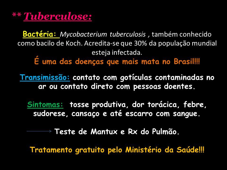 ** Tuberculose: Bactéria: Mycobacterium tuberculosis, também conhecido como bacilo de Koch. Acredita-se que 30% da população mundial esteja infectada.