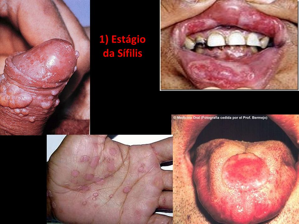 1) Estágio da Sífilis