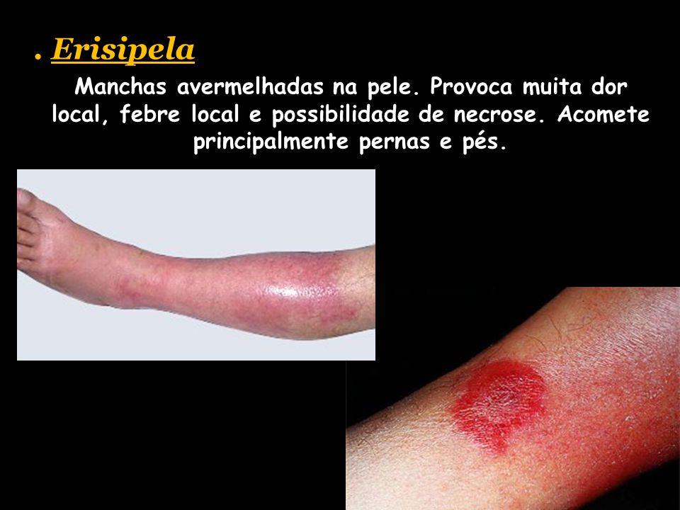 . Erisipela Manchas avermelhadas na pele. Provoca muita dor local, febre local e possibilidade de necrose. Acomete principalmente pernas e pés.