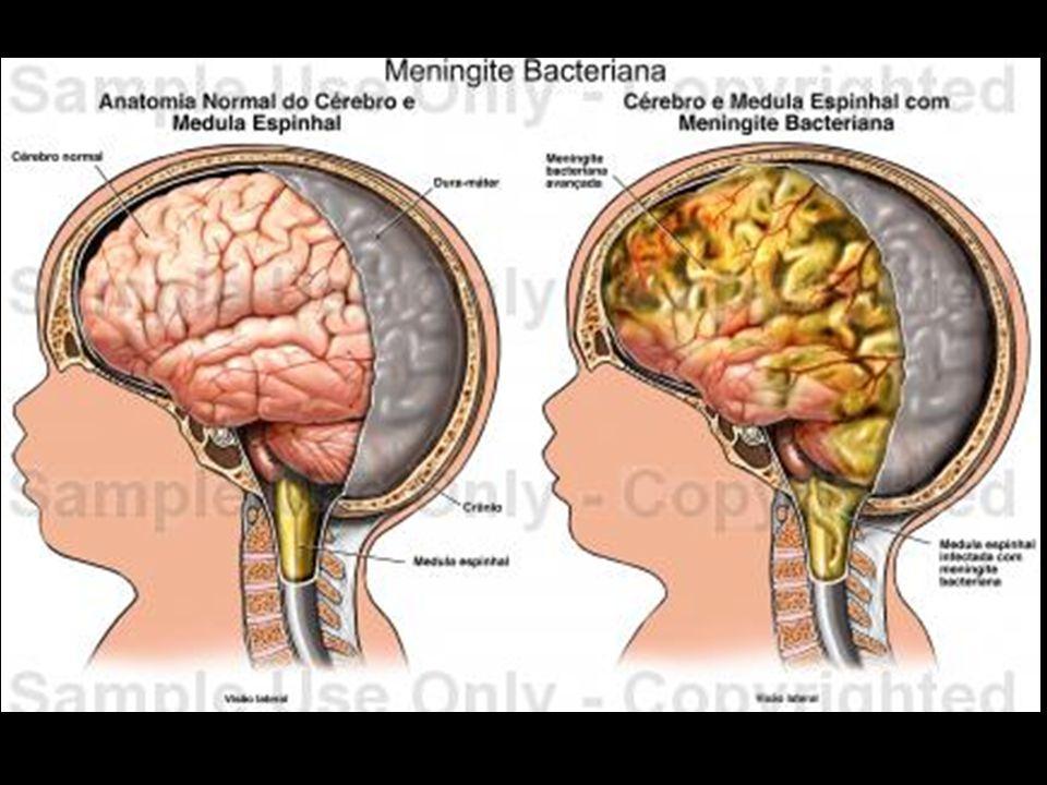 ** Gonorréia: DST Bactéria: Neisseria gonorrheae, compromete com maior frequencia a uretra (canal que liga a bexiga ao meio externo).