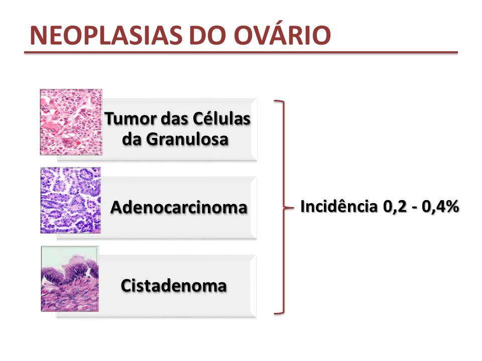 Tumor das Células da Granulosa Adenocarcinoma Adenocarcinoma CistadenomaCistadenoma Incidência 0,2 - 0,4% NEOPLASIAS DO OVÁRIO