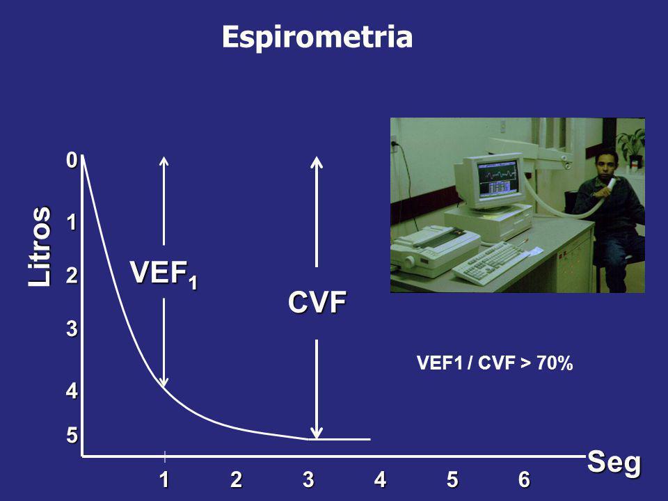 Espirometria0 5 1 4 2 3 Litros 165432 VEF 1 Seg CVF VEF1 / CVF > 70%