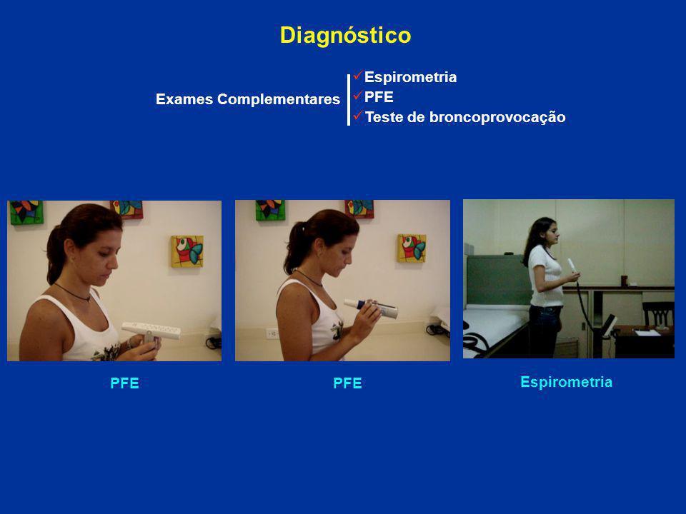 Exames Complementares Espirometria PFE Teste de broncoprovocação PFE Espirometria Diagnóstico PFE
