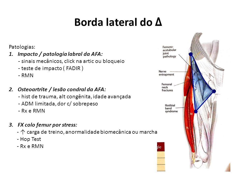 Borda lateral do Δ Patologias: 1.Impacto / patologia labral da AFA: - sinais mecânicos, click na artic ou bloqueio - teste de impacto ( FADIR ) - RMN 2.Osteoartrite / lesão condral da AFA: - hist de trauma, alt congênita, idade avançada - ADM limitada, dor c/ sobrepeso - Rx e RMN 3.FX colo femur por stress: - ↑ carga de treino, anormalidade biomecânica ou marcha - Hop Test - Rx e RMN