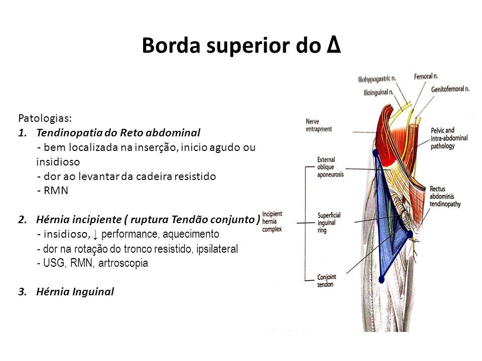 Borda superior do Δ Patologias: 1.Tendinopatia do Reto abdominal - bem localizada na inserção, inicio agudo ou insidioso - dor ao levantar da cadeira resistido - RMN 2.Hérnia incipiente ( ruptura Tendão conjunto ) - insidioso, ↓ performance, aquecimento - dor na rotação do tronco resistido, ipsilateral - USG, RMN, artroscopia 3.Hérnia Inguinal