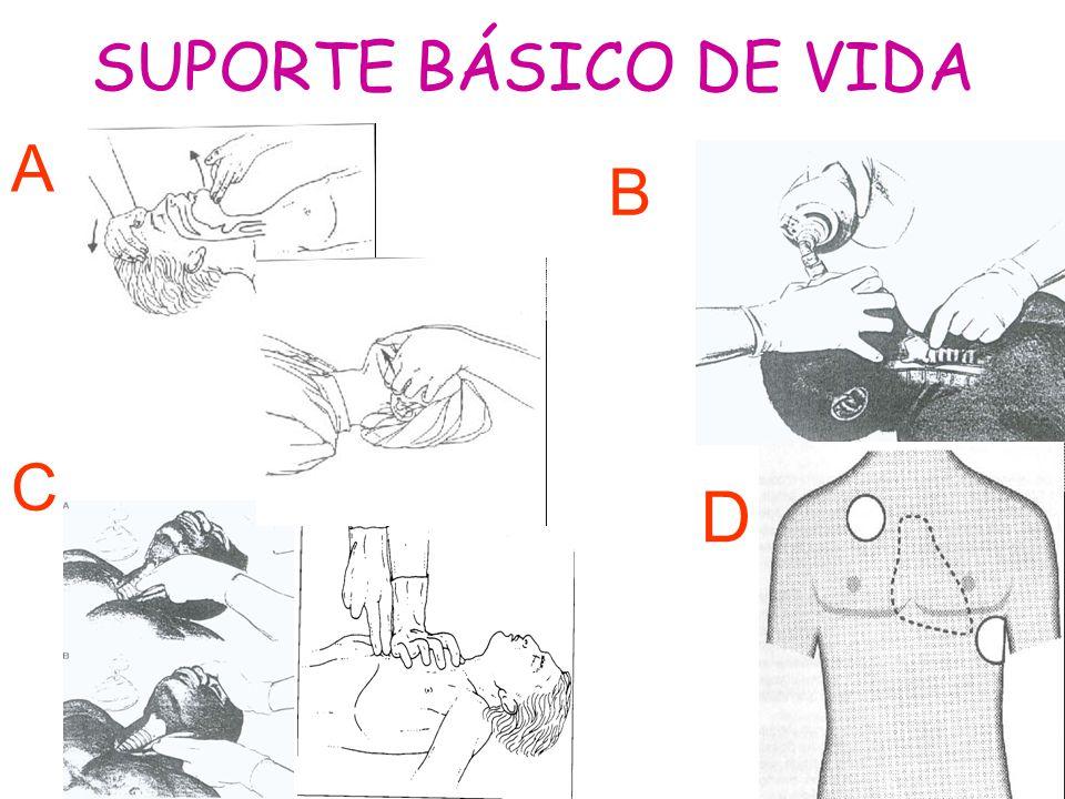 SUPORTE BÁSICO DE VIDA A B C D