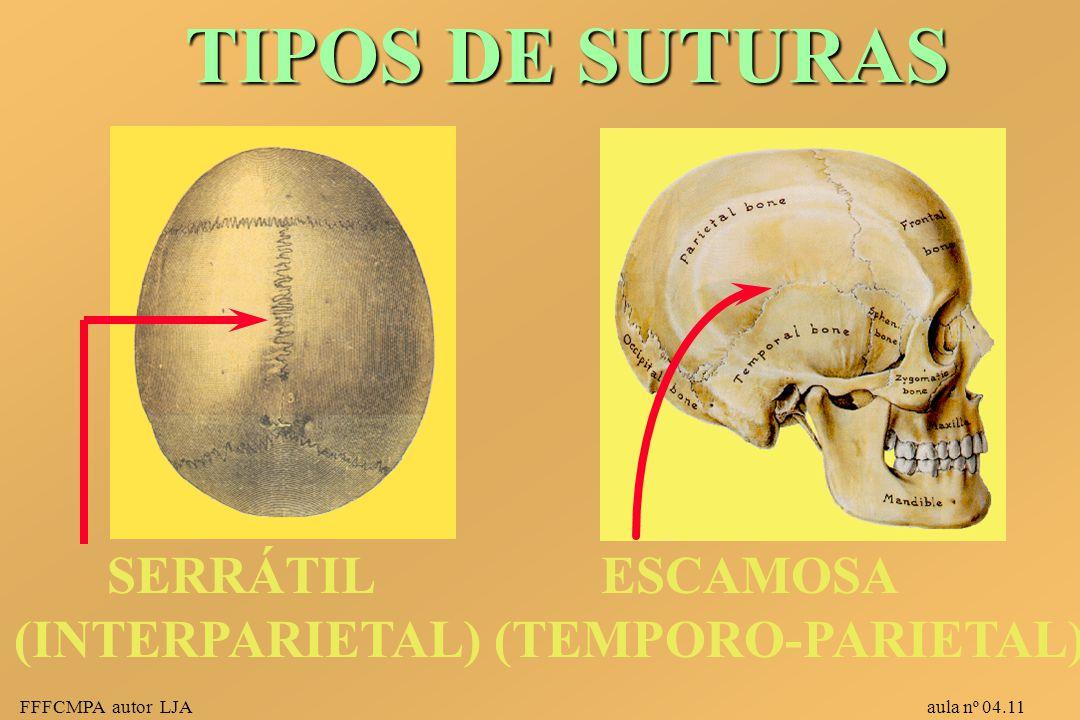 FFFCMPA autor LJA aula nº 04.11 ESCAMOSA (TEMPORO-PARIETAL) SERRÁTIL (INTERPARIETAL) TIPOS DE SUTURAS TIPOS DE SUTURAS